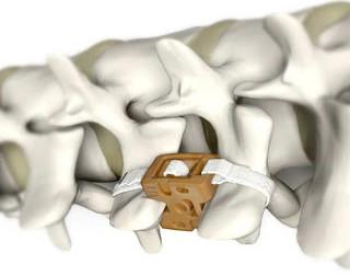 PEEK implant.bmp